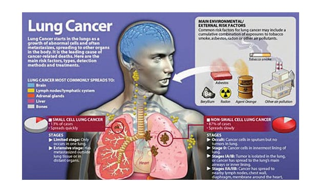 November is Lung Cancer Awareness Month - The Tennessee Tribune