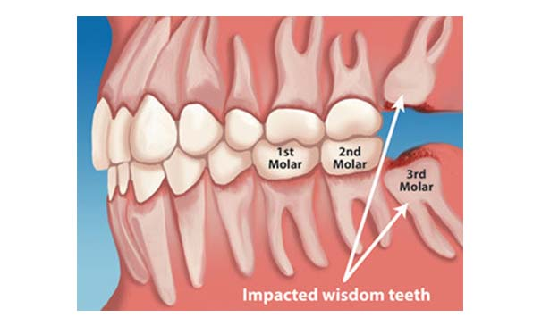 What Is A Wisdom Tooth The Tennessee Tribune